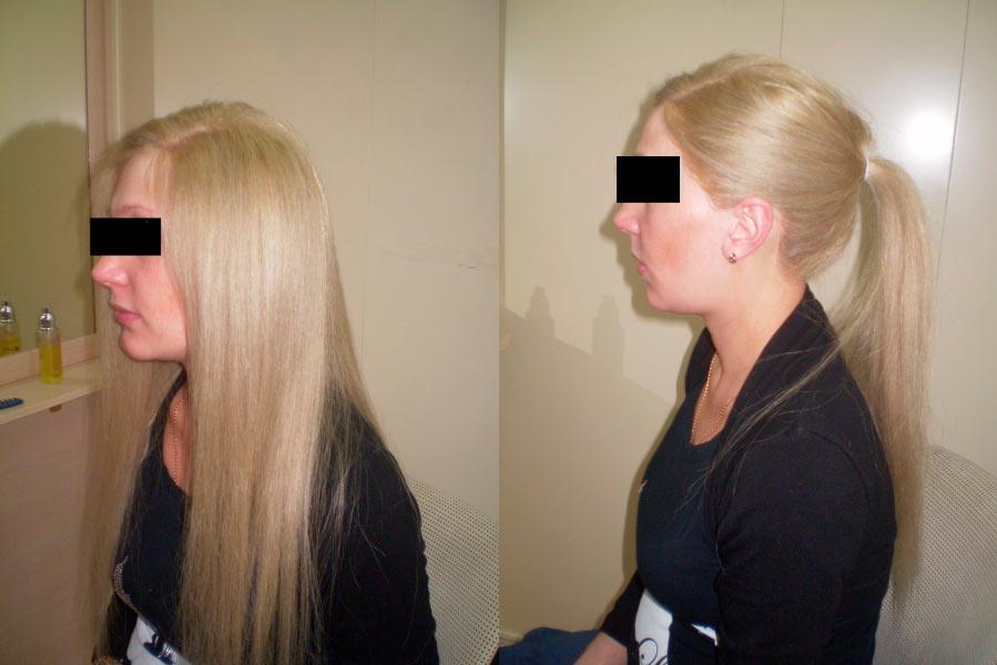 Система волос отзывы фото